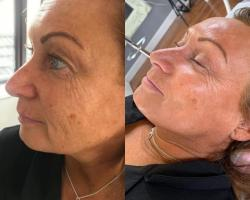 Dermaplaning and BBglow Facial deal image