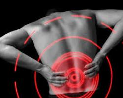 Lower Back Pain deal image